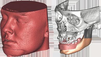 Dysgnathie Chirurgie Behandlungsaufbaluf