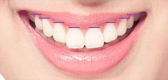 Zahnfleischverlauf