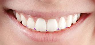 Zahnform und Zahnbogen
