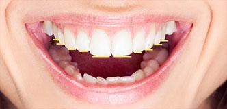 Zahnlängen und Schneidekantenverlauf