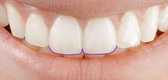Zahnfarbe und Struktur