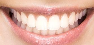 Zähne - Variationen der Natur