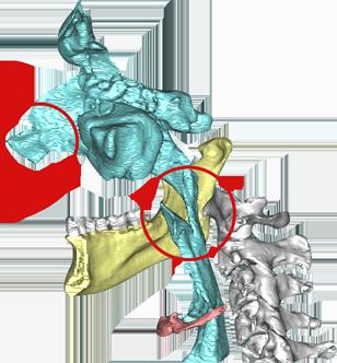 Atemwege Darstellung CT/DVT