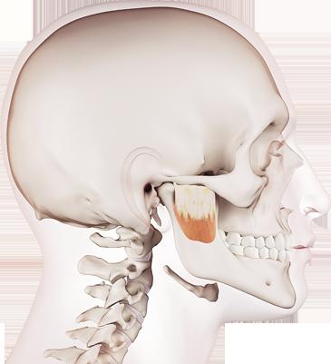 Sagittale Kieferfehlstellung
