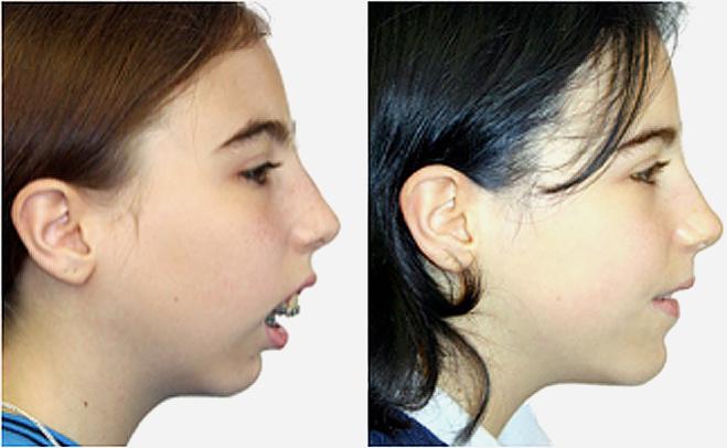 Operation bimax Maxillomandibular advancement